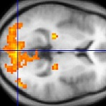 Image of an FMRI scan of the brain for your Expert Witness story